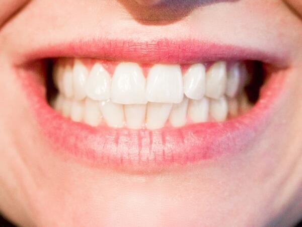 Tanden bleken in Emmeloord